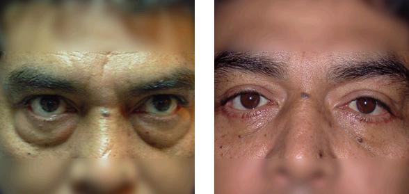 Los círculos ante los ojos los síntomas de que