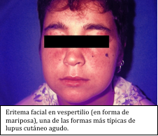 Lupus eritomatoso