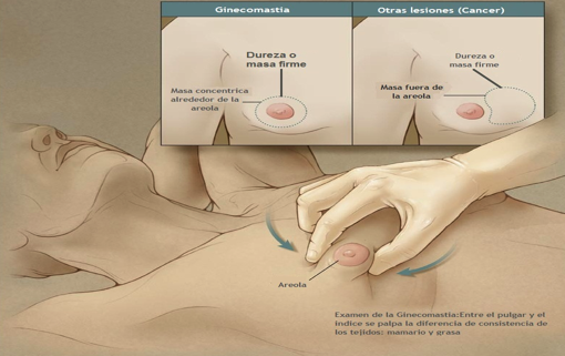 sintomas ginecomastia esteroides