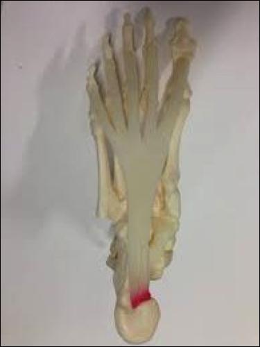 fascia del pie, fascitis plantar
