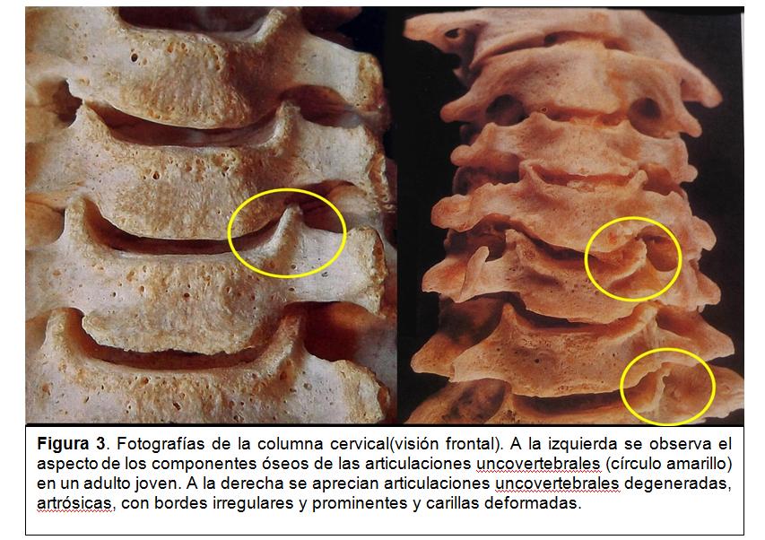 Las hernias de los discos s4-s7 sheynogo del departamento de la columna vertebral